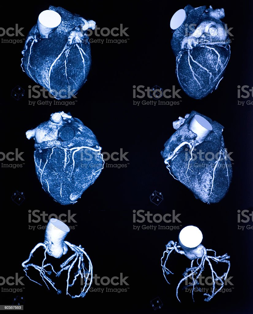 coronary angiography by multidetector computed tomography stock photo