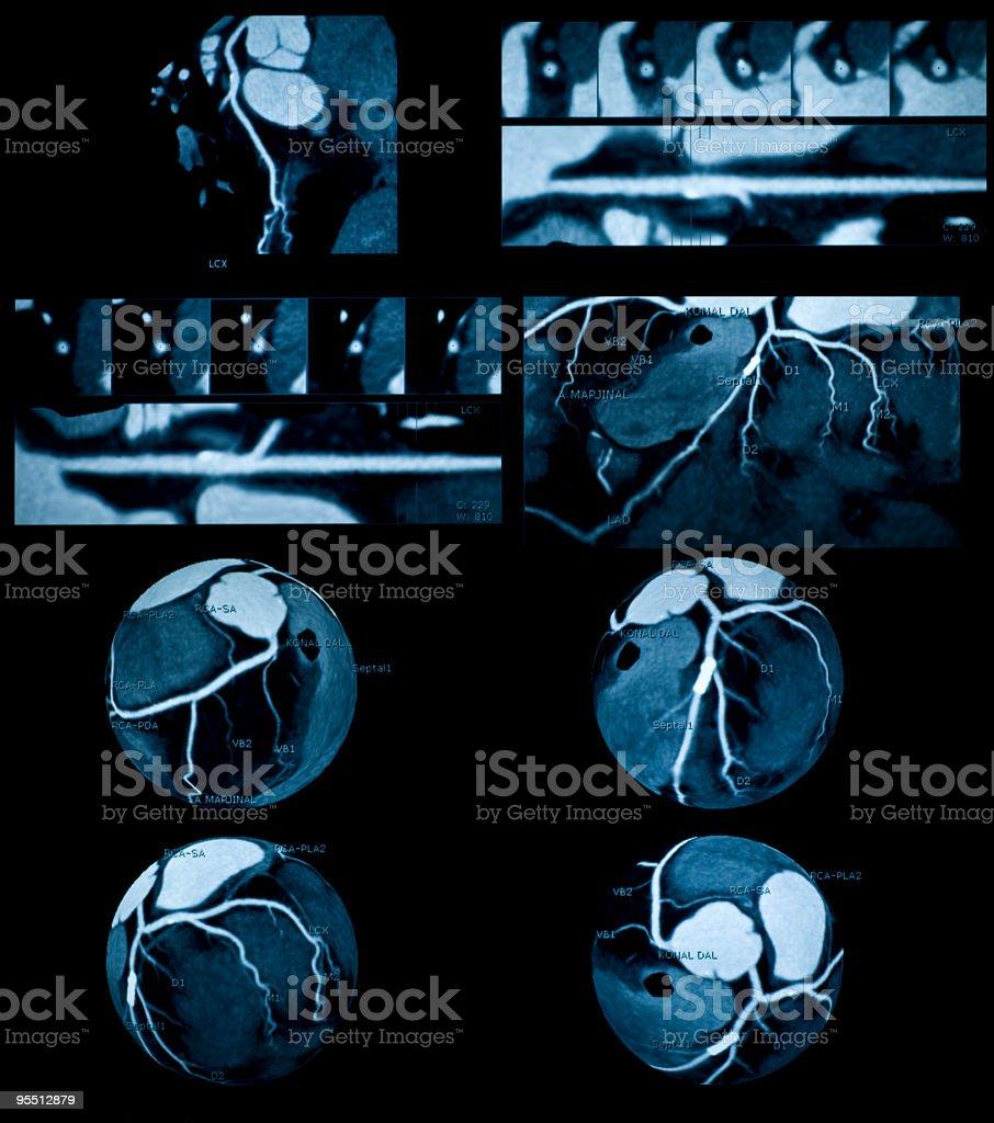 Coronary Angiography stock photo