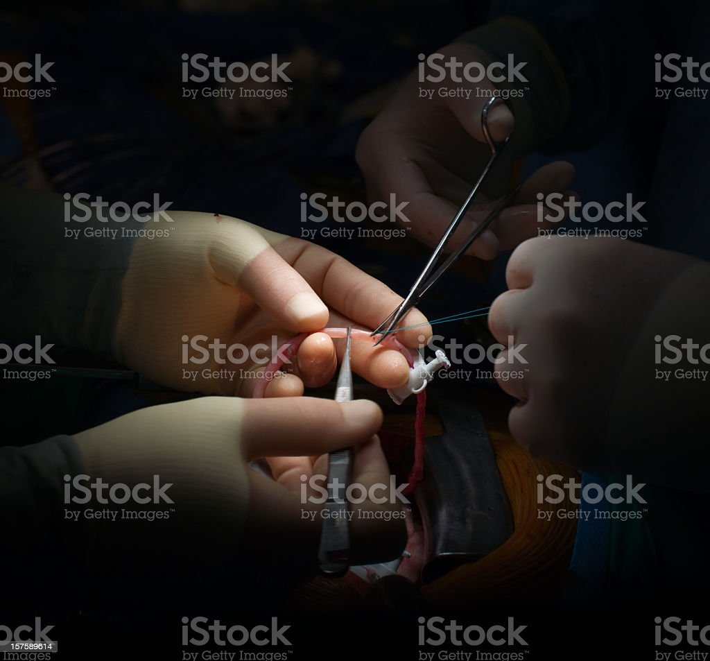Coronary Artery Bypass Graft Surgery-Cardiac stock photo