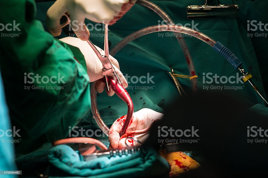 coronary artery bypass grafting stock photo
