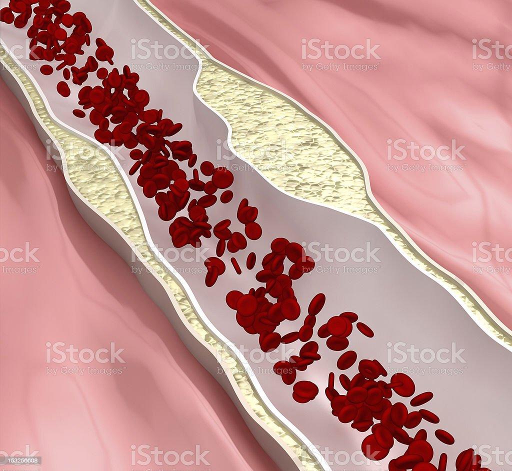 Coronary atherosclerosis desease stock photo