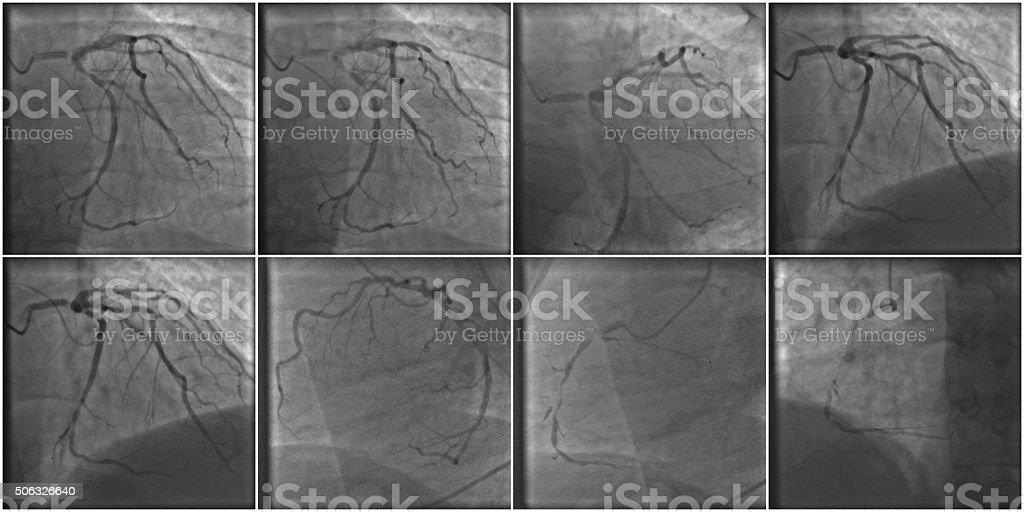 Coronary atherosclerosis stock photo