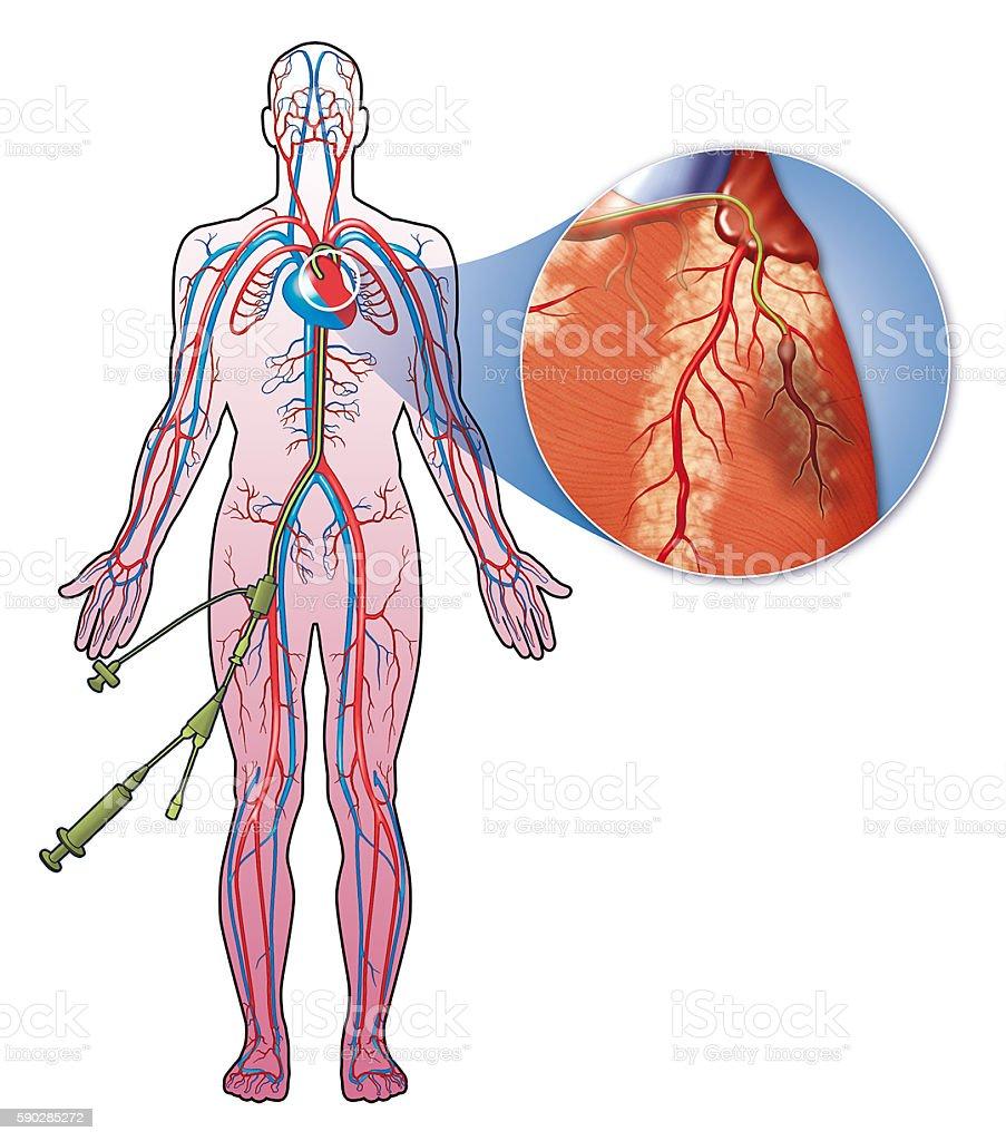 Coronary catheterization stock photo