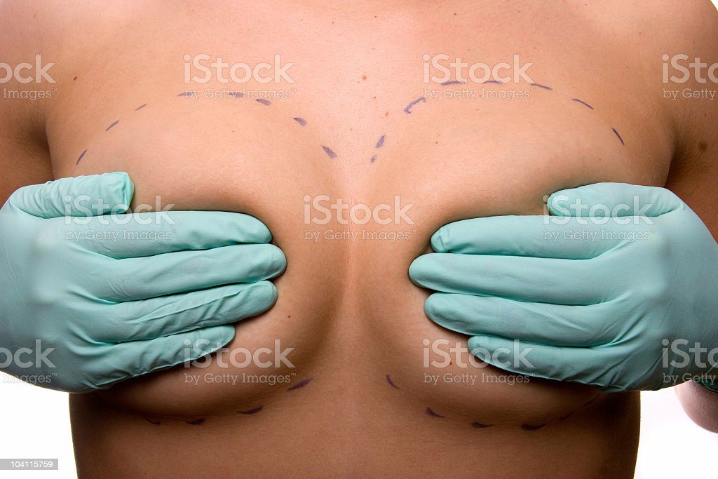 Cosmetic Surgery Breast Implants royalty-free stock photo
