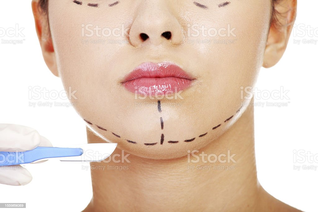 Cosmetic surgery concept stock photo