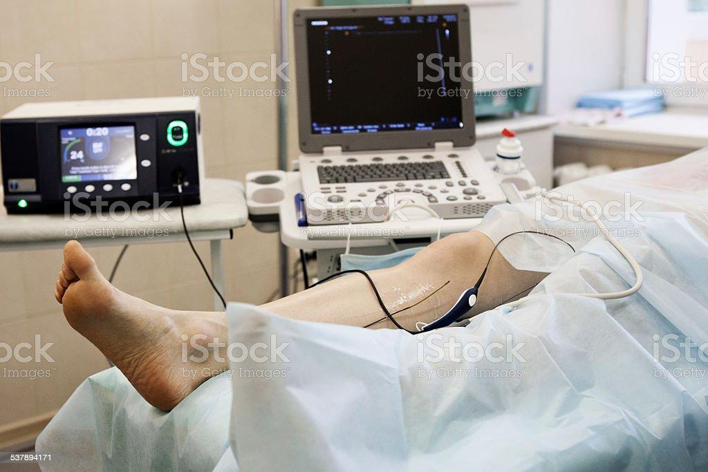 Cosmetic Surgery, varicose veins stock photo