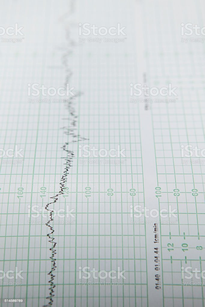 cotraction tracking stock photo
