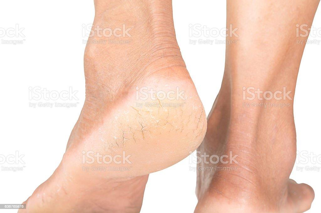 Cracked heels stock photo