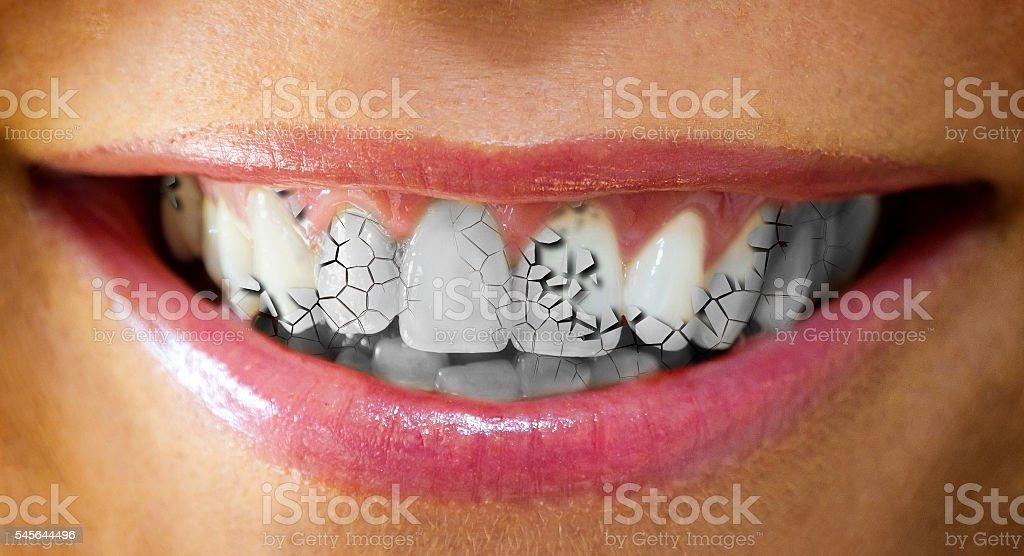 Cracked teeth stock photo