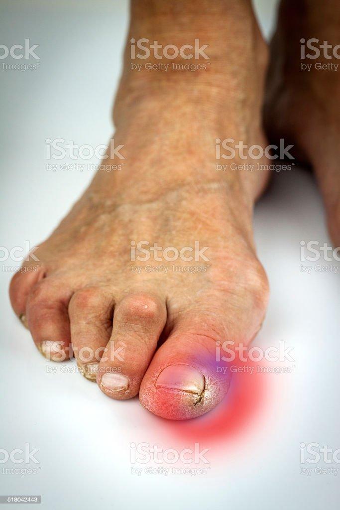 Cracked toe and bunion deformity stock photo