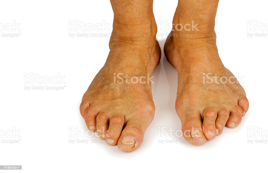 Cracked toe and bunion deformity stock photo