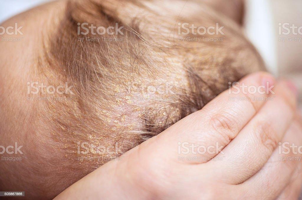 Cradle Cap or Infantile Seborrheic Dermatitis stock photo