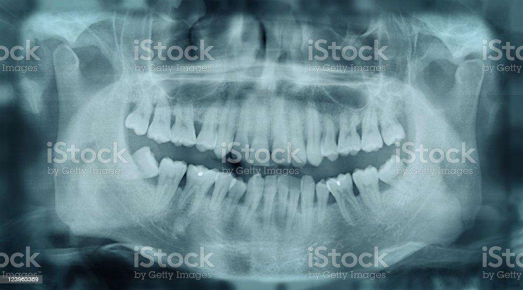 Crooked Teeth X-ray stock photo
