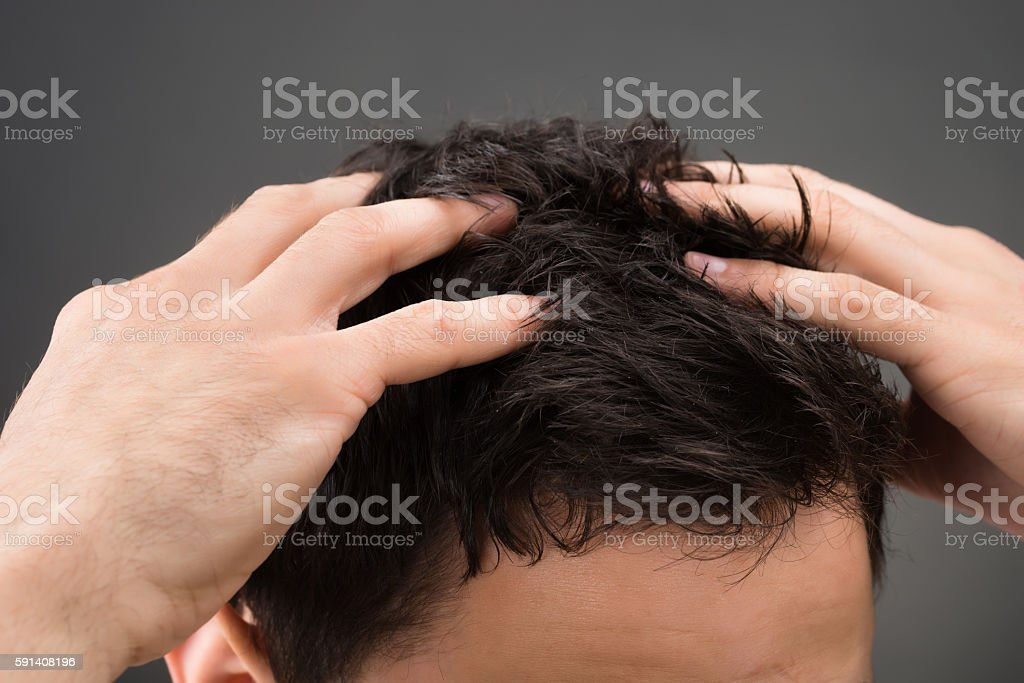 Cropped Image Of Man Suffering From Dandruff stock photo