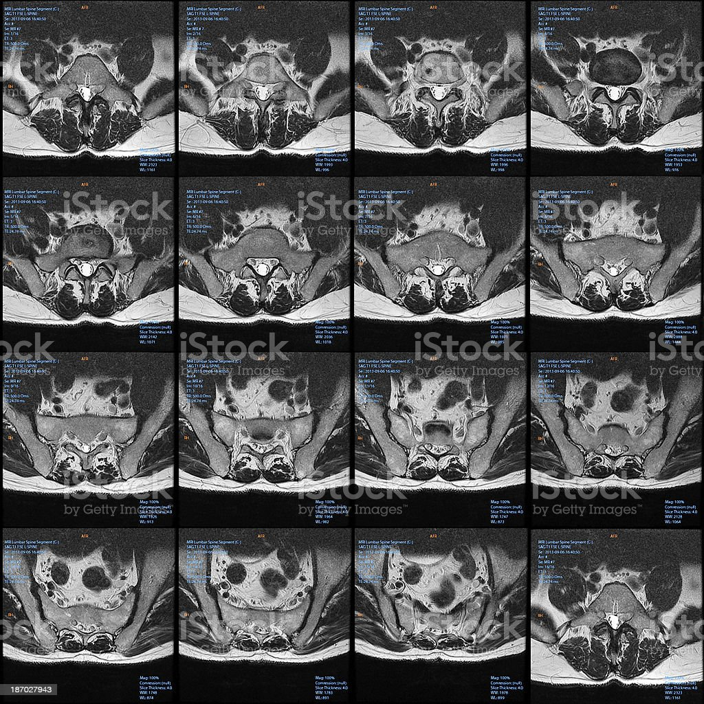 MRI cross section slices of the Lumbar Spine (spinal column) royalty-free stock photo