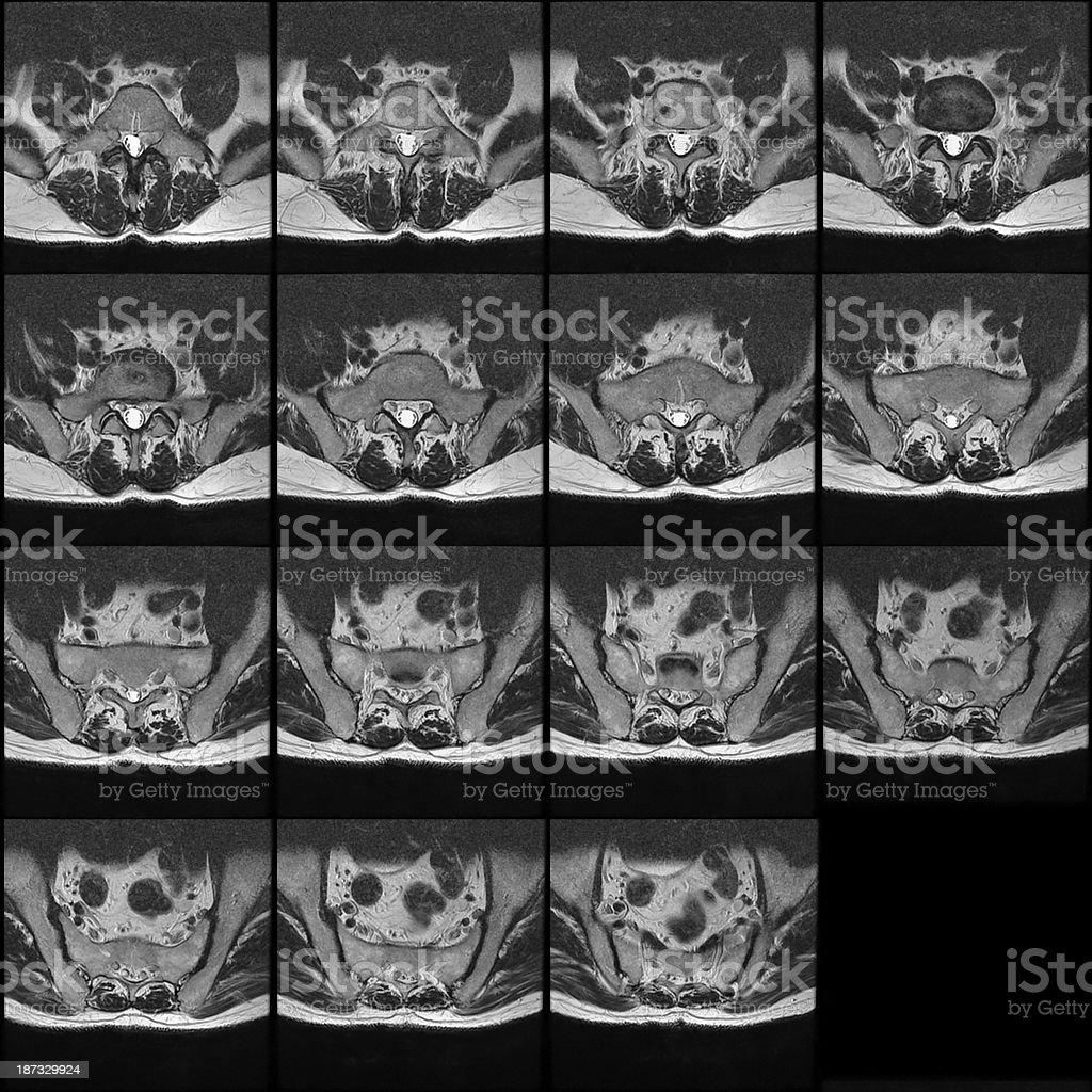 MRI cross section slices of the Lumbar Spine (spinal column) stock photo