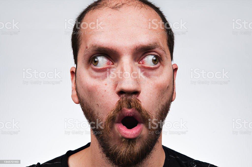 Cross-eyed man royalty-free stock photo