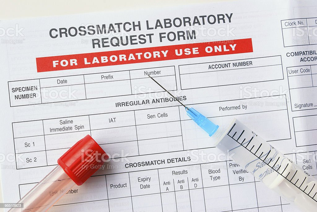 Crossmatch test stock photo