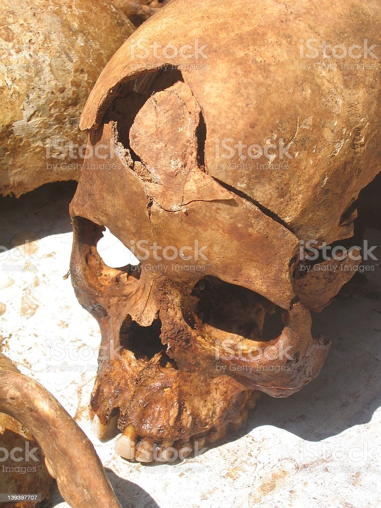 Crushed skull stock photo