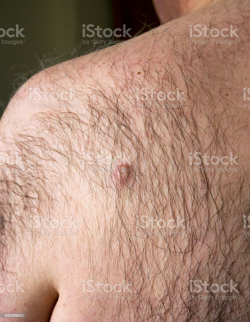 Crusty cyst on a man's back stock photo
