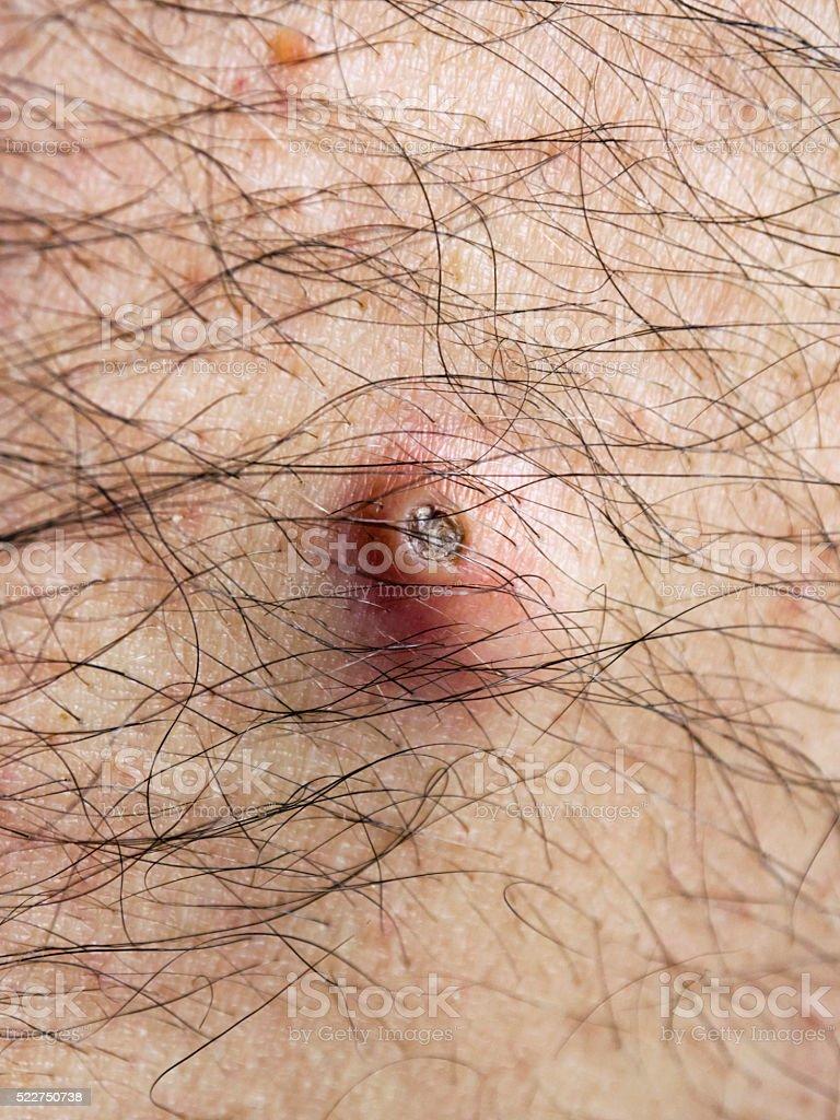 Crusty cyst on a senior man's back stock photo