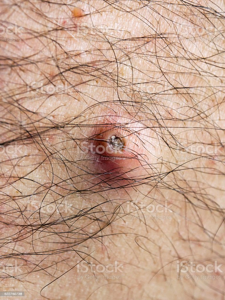 Crusty cyst on a senior man's back stock photo