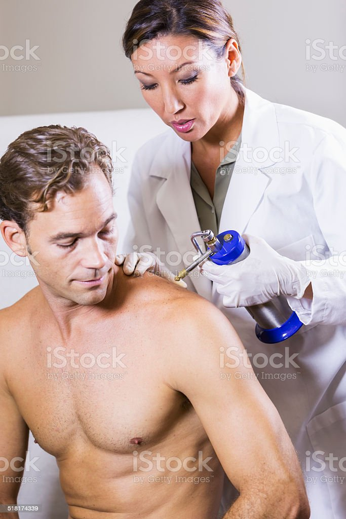 Cryotherapy to remove skin lesion stock photo