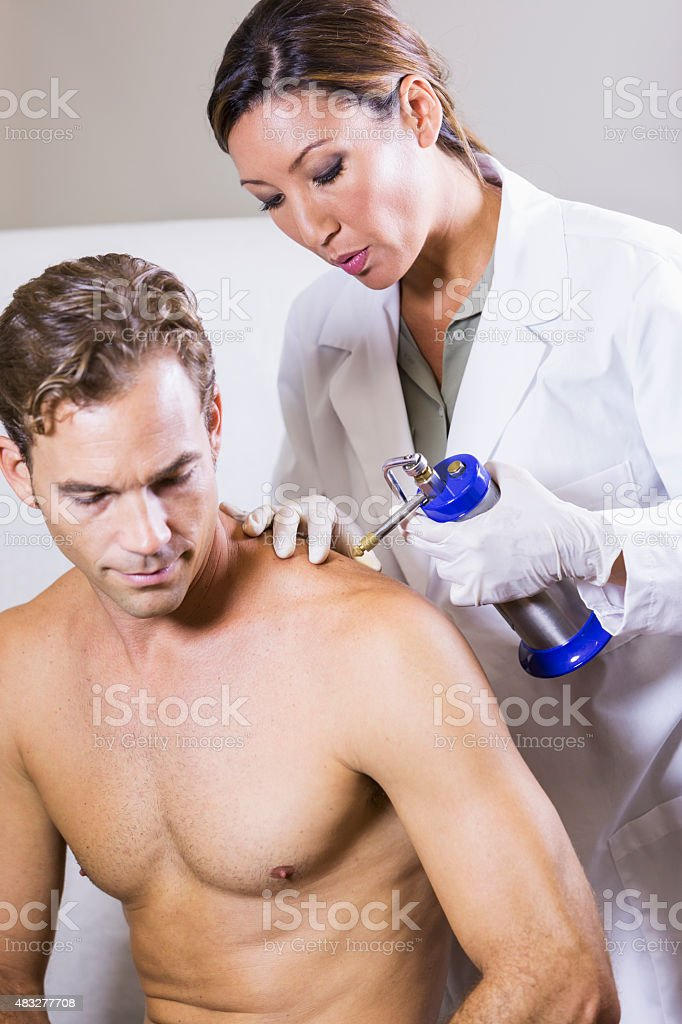 Cryotherapy treatment at dermatologist's office stock photo