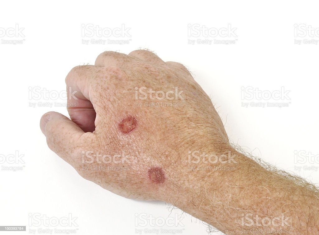 Cryotherapy treatment stock photo