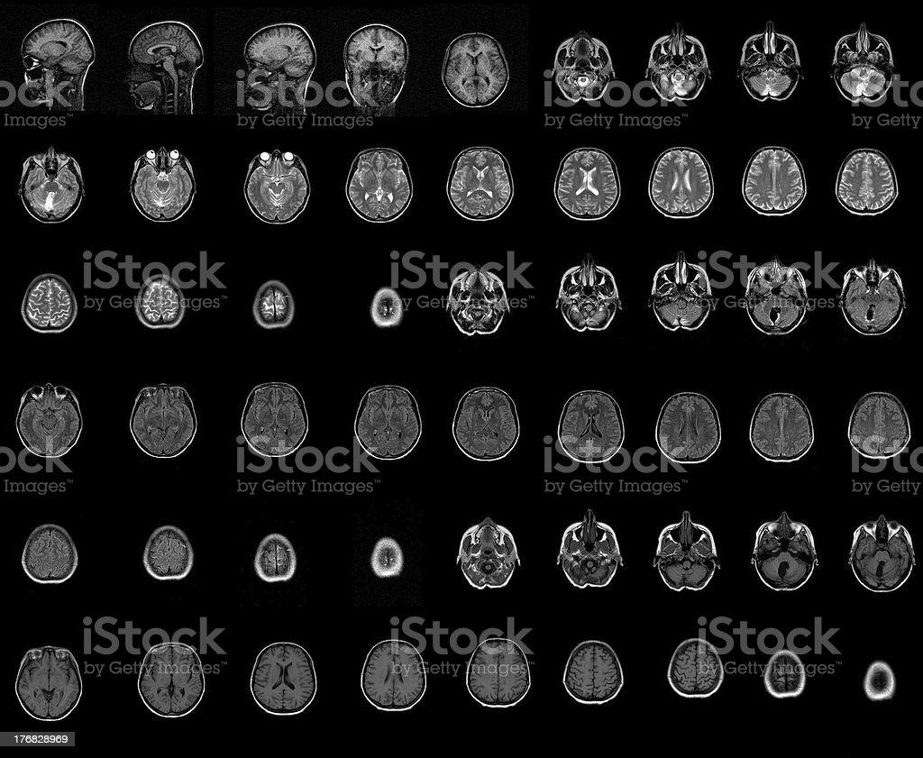 ct computer tomography brain royalty-free stock photo