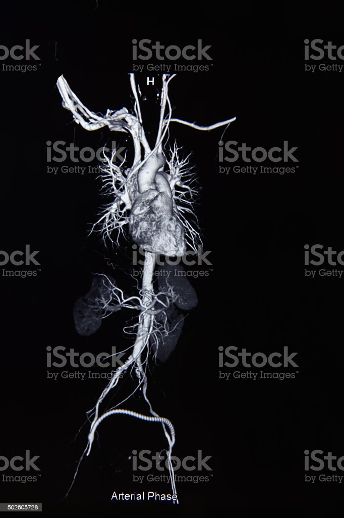 Ct scan angiogram (take photo from film x-ray) stock photo