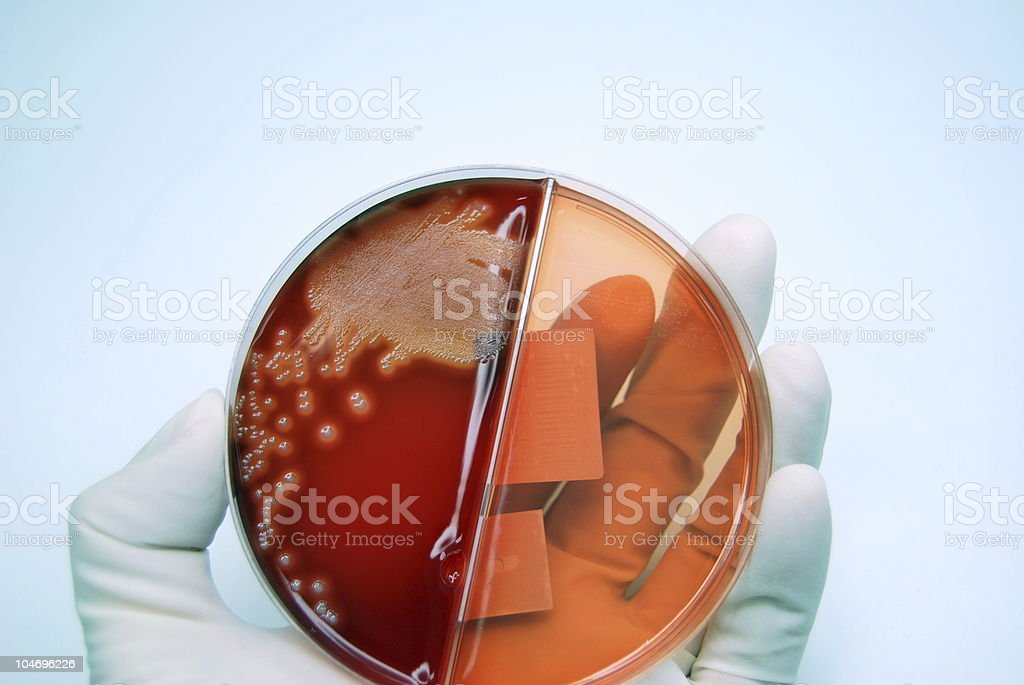 Culture of Streptococcus royalty-free stock photo
