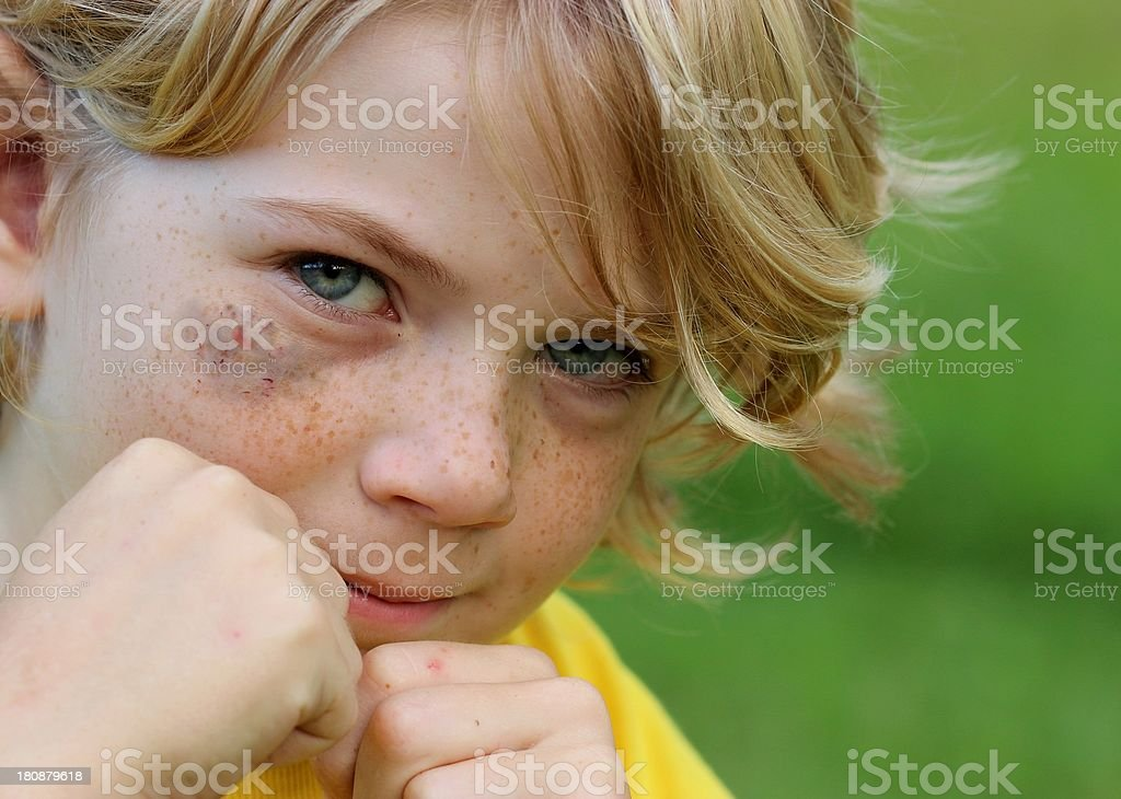 Cute Boy with black eye royalty-free stock photo