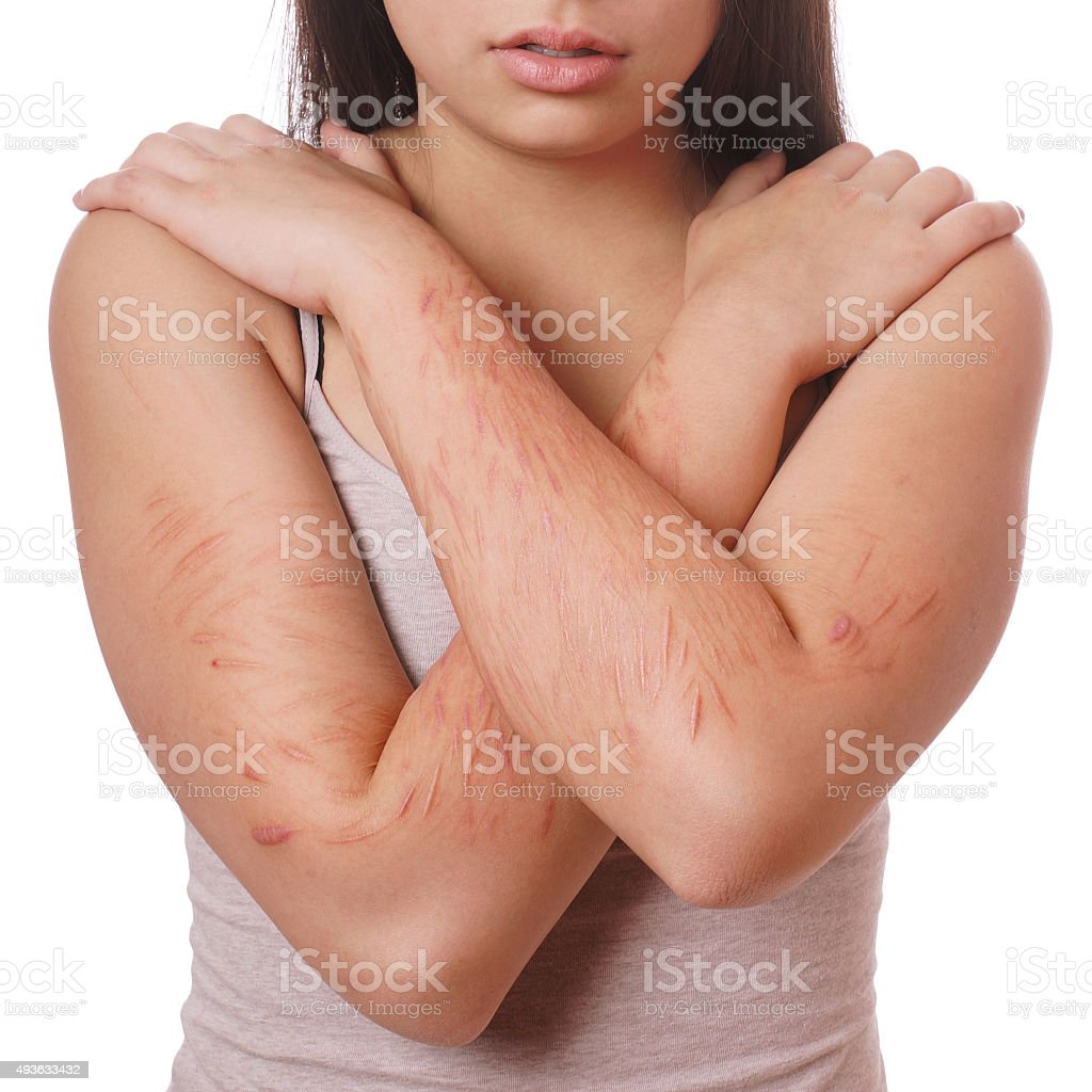 cuts and scars from self harm stock photo