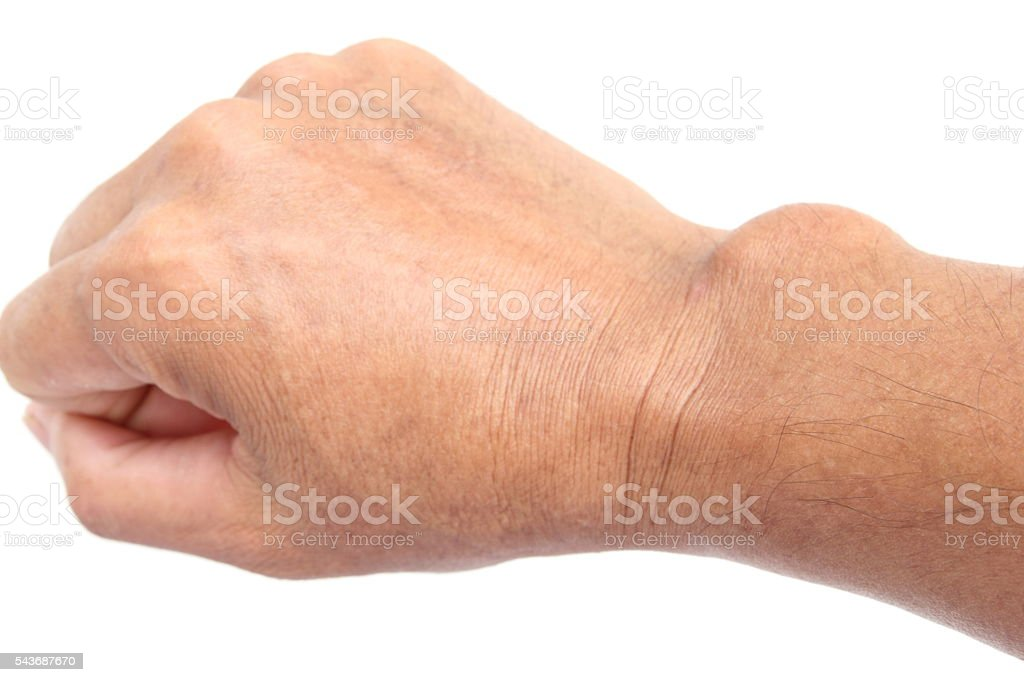 Cyst on the hand stock photo