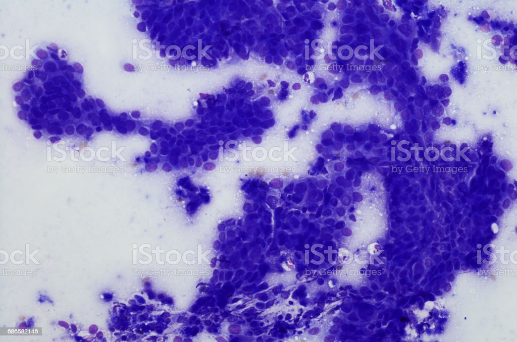 Cytology of esophageal adenocarcinoma.  Diff-quik stain stock photo