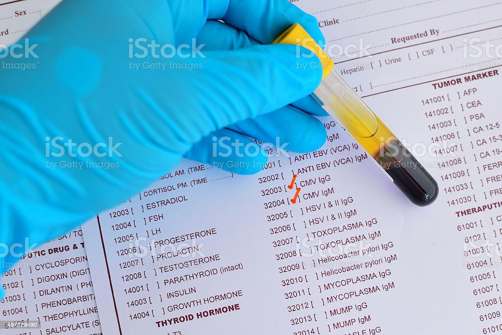 Cytomegalovirus testing stock photo