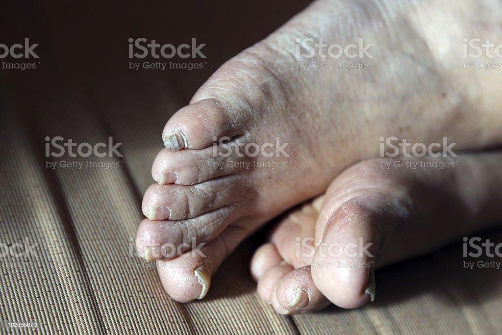 damaged nails of woman's feet royalty-free stock photo