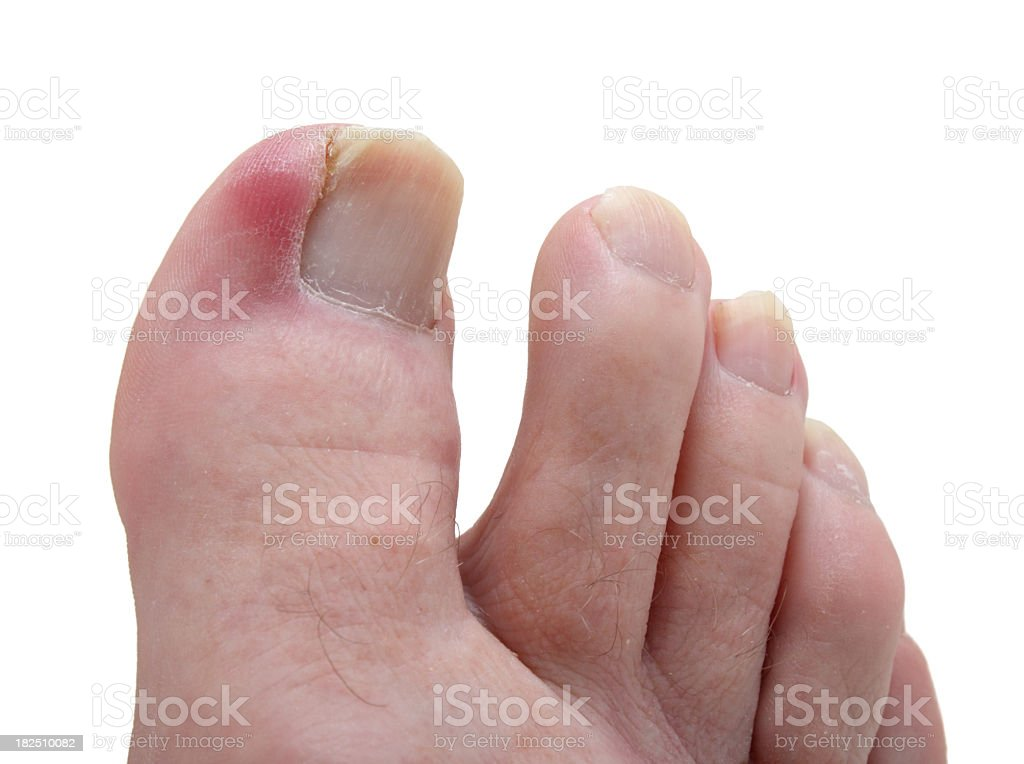 damaged septic ingrown toenail isolated stock photo