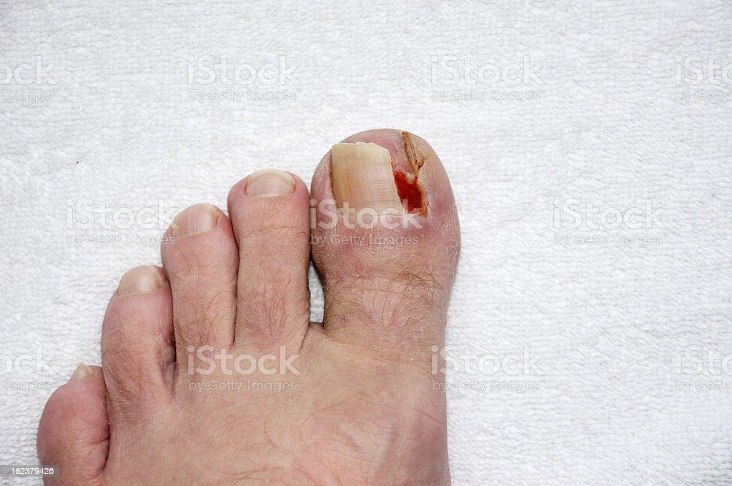 Damaged Toe Nail stock photo
