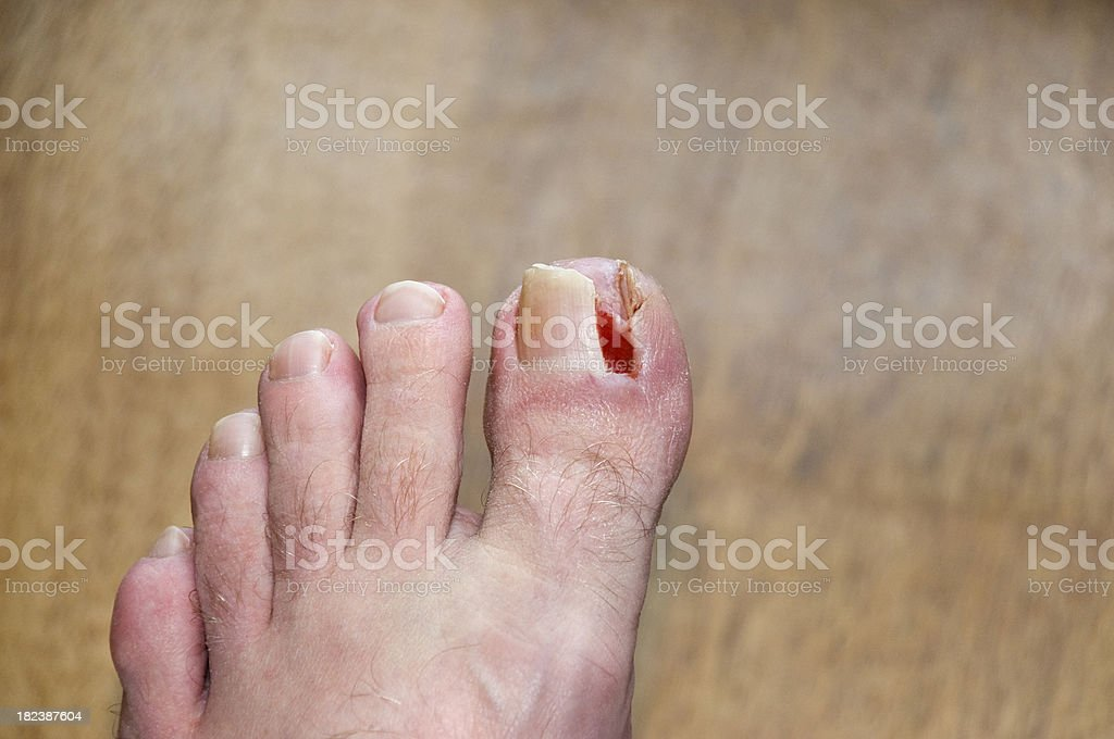 Damaged Toe Nail royalty-free stock photo