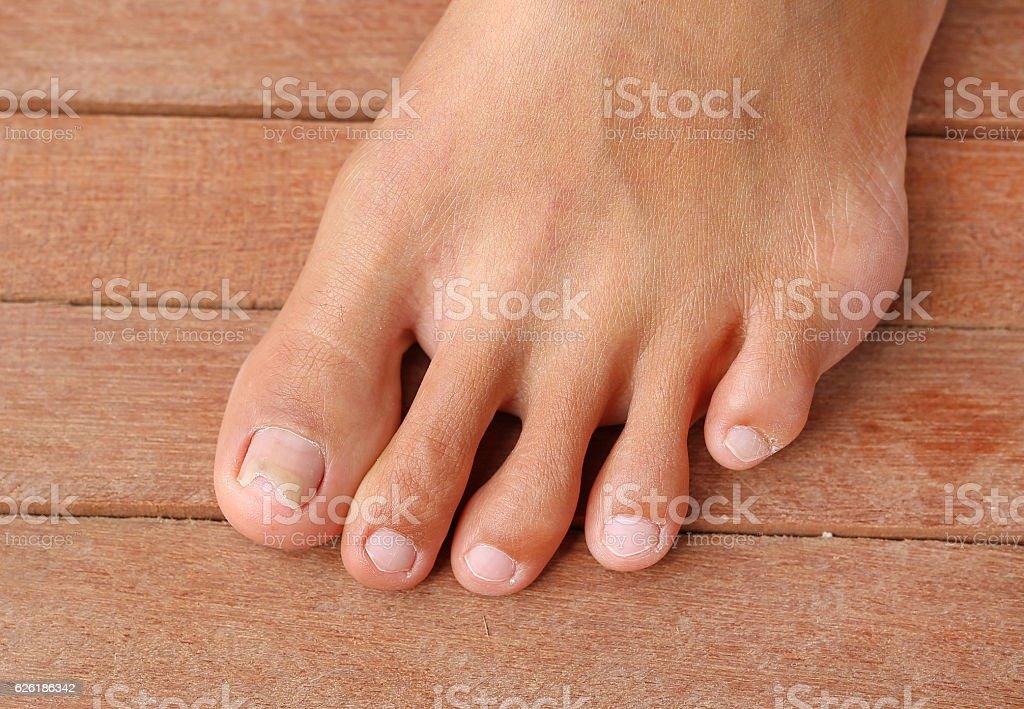 Damaged toenail, broken nail with copy space stock photo
