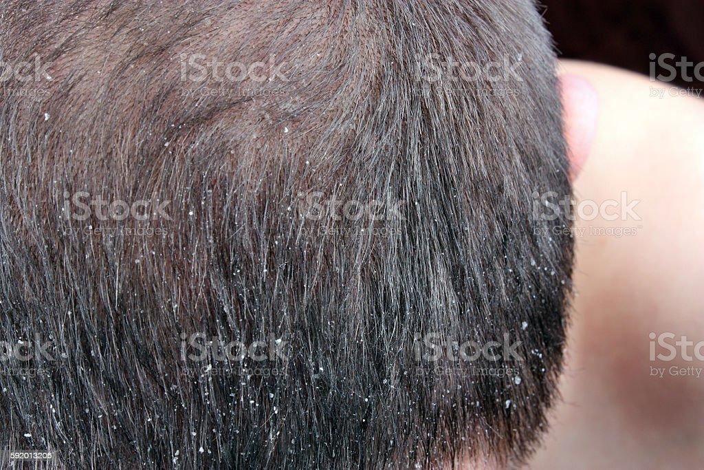 Dandruff in the hair stock photo