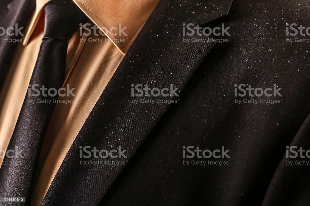 Dandruff problem stock photo