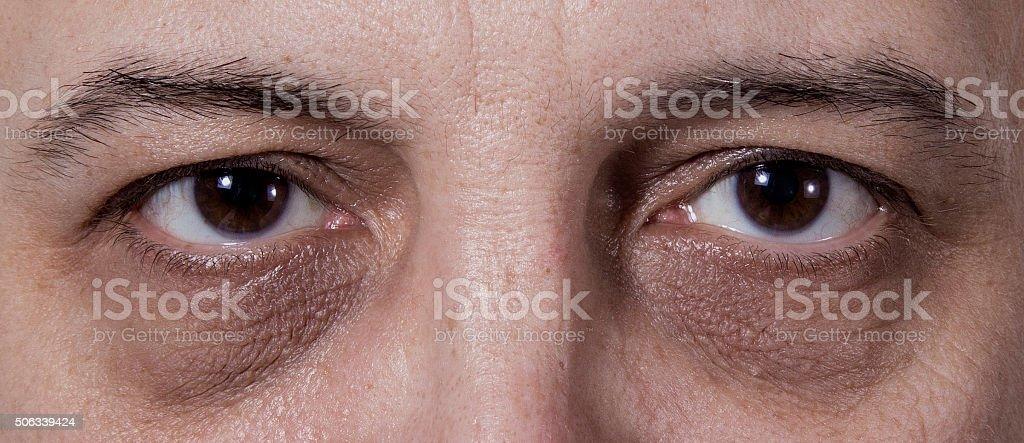 Dark eye circles stock photo