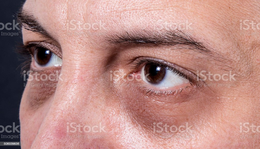 Dark eye circles royalty-free stock photo