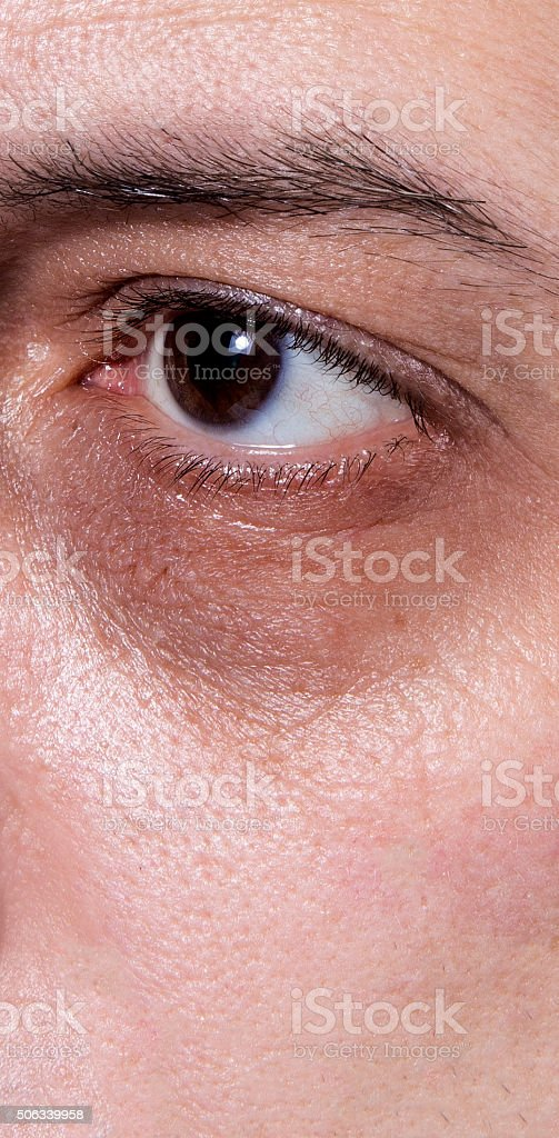 Dark eye circles royalty-free stock photo
