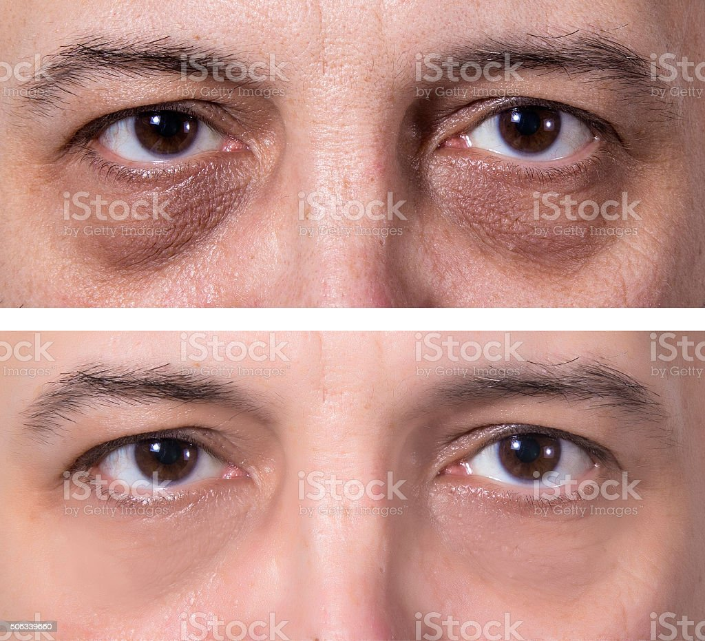 Dark eye circles treatment - BEFORE and AFTER royalty-free stock photo