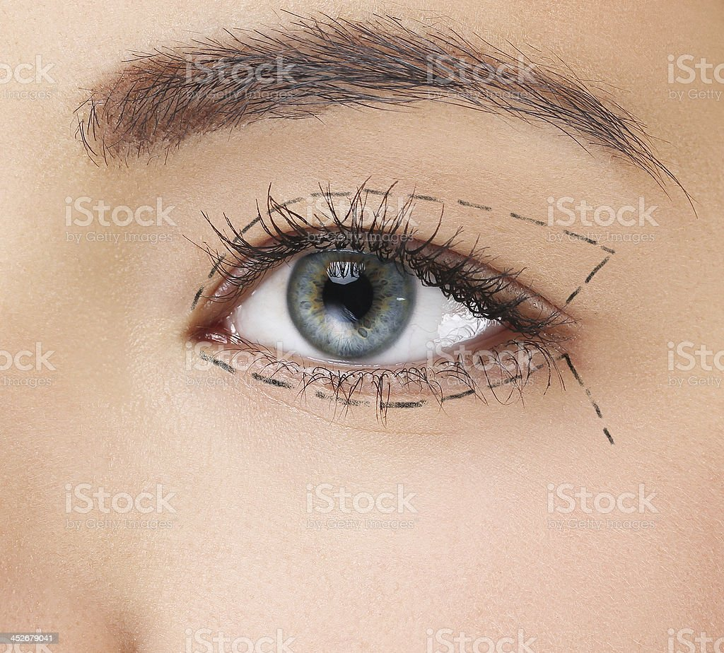 Dark perforated line around woman's left eye stock photo