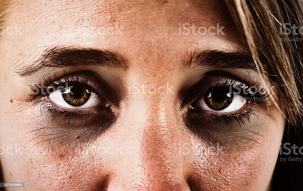 Dark rings round the eyes of a sad, exhausted woman stock photo